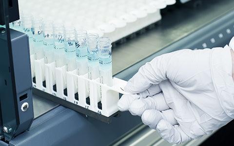 がん予防にもつながる 自分の病気や体質の遺伝的な傾向がわかる遺伝子検査「MYCODE(マイコード)」